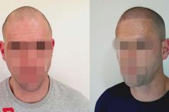 Scalp Coverage & New Hairline - Second Session